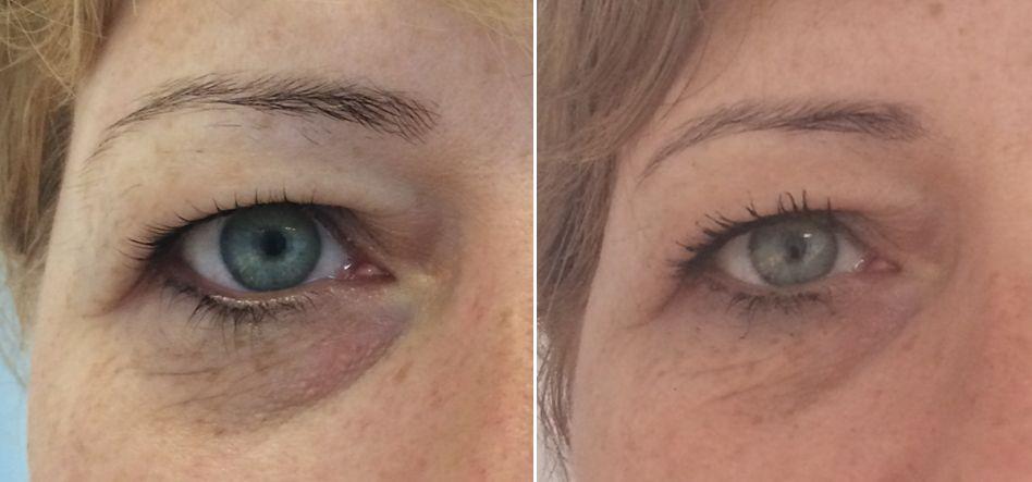 cieniepod oczami przed i po 5 zabiegach Fenix