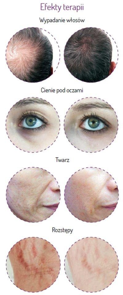 Self Beauty efekty terapii