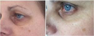 cienie pod oczami przed i po 3 zabiegach Fenix