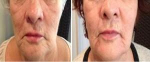 lifting twarzy miesiąc po zabiegu scarlet rf 1