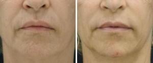 lifting twarzy miesiąc po zabiegu scarlet rf 3