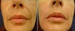 lifting twarzy miesiąc po zabiegu scarlet rf 4