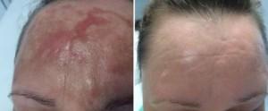 redukcja blizny scarlet rf przedipo3 miesiącach