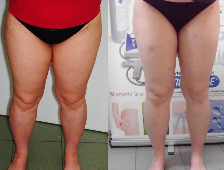 Carboxytherapie zum schlanken Bauch und
